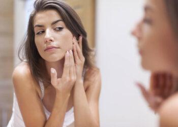 Huidafwijkingen bij uitdovende acne
