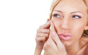 De top 5 dingen die je moet weten over acne
