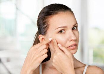 Bijzondere vormen van acne