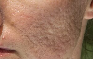 medicijnen tegen acne
