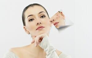 Tips voor genezing van acne bij een gevoelige huid