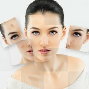 Omgaan met Acne en droge huid